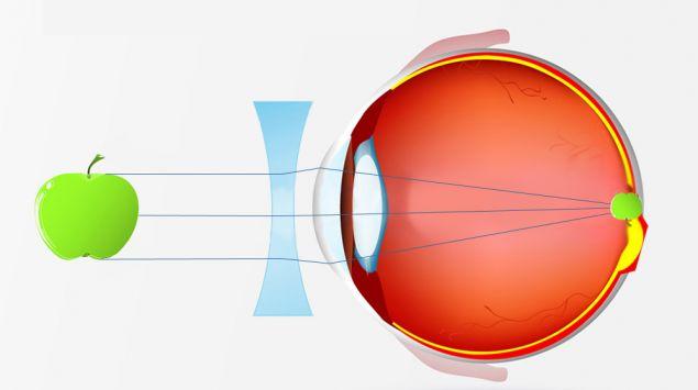 Die visuelle Wahrnehmung bei Kurzsichtigkeit mit einer Brille, grafisch dargestellt