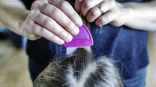 Läuse werden aus Haaren ausgekämmt.