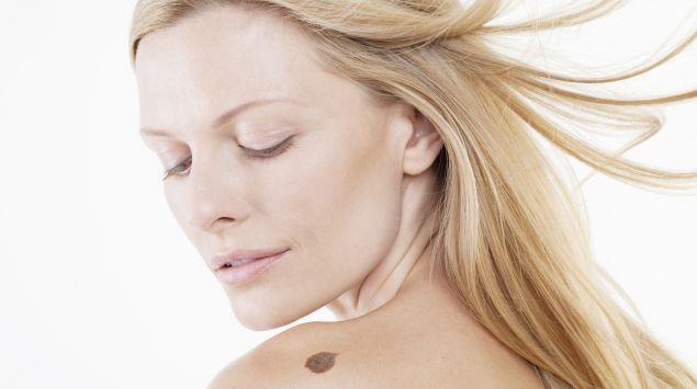 Das Bild zeigt eine Frau, die auf ihren Leberfleck an der Schulter schaut.