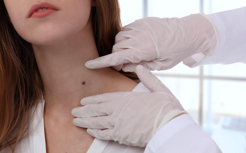 Muttermal und Leberflecken:Man sieht eine Frau mit Leberflecken an Hals und Ausschnitt.