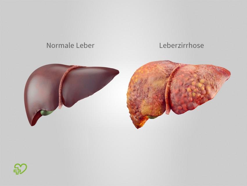 Das Bild zeigt die Illustration einer normalen Leber und einer Leber bei Leberzirrhose.