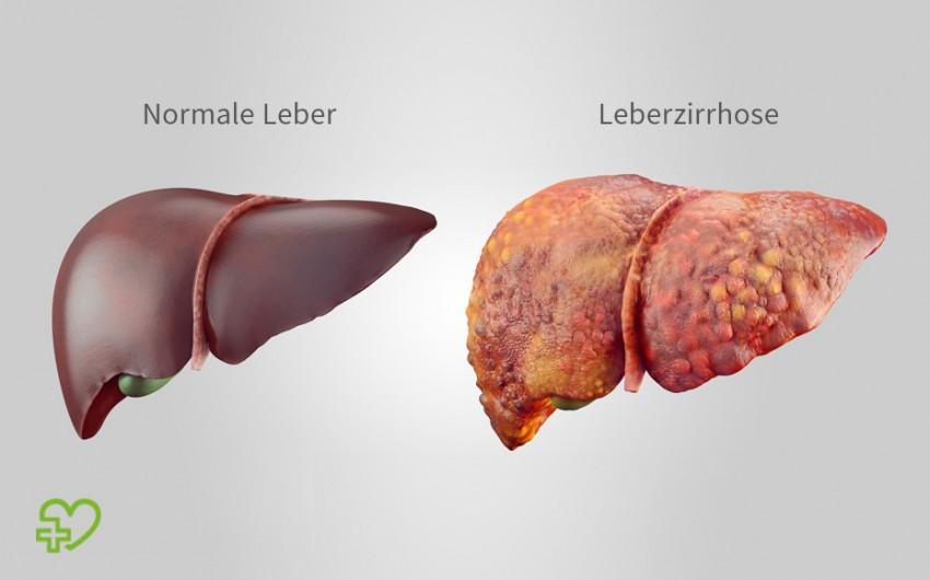 Eine Leberzirrhose ist das Endstadium verschiedener Lebererkrankungen. Permanent geschädigt, verhärtet das Lebergewebe, vernarbt und schrumpft.