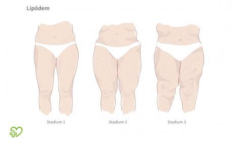 Man sieht eine grafische Darstellung der drei Lipödem-Stadien.
