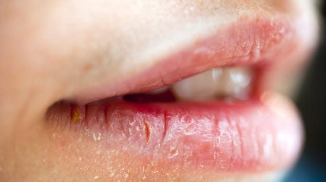 Poröse, weibliche Lippen von der Seite.