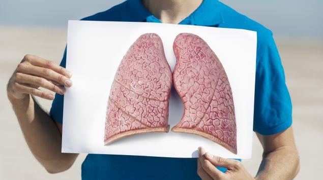 Das Bild zeigt eine Person, die eine Illustration der Lunge hochhält.