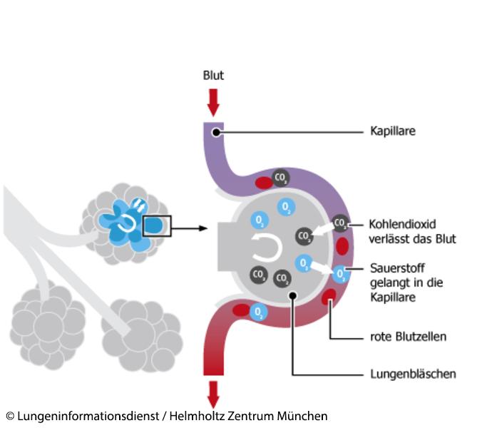 Lungenödem (Wasser in der Lunge): Ursachen, Symptome & Behandlung ...