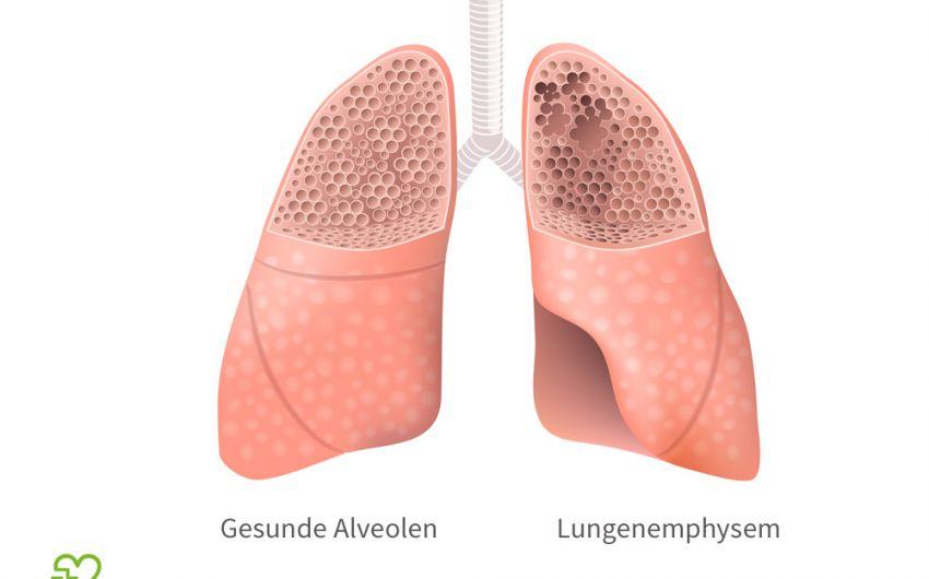 Ein grafische Darstellung eines Lungenemphysems und gesunder Alveolen.
