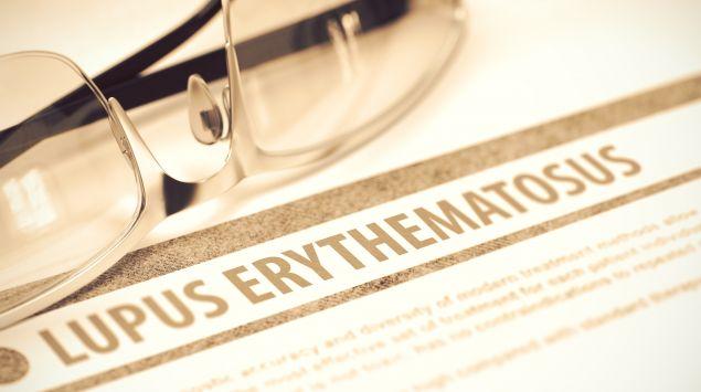 """Das Bild zeigt die Aufschrift """"Lupus erythematosus"""" auf einem Papier."""