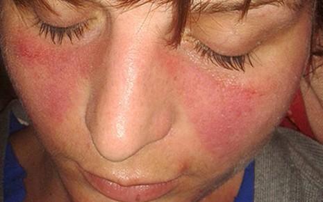 Das Bild zeigt den rötlichen, schmetterlingsförmigen Hautausschlag im Gesicht, der typisch für den systemischen Lupus erythematodes ist.
