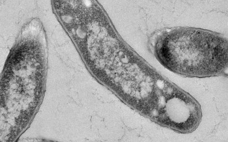 Man sieht den Erreger Mycobacterium tuberculosis unter dem Transmissions-Elektronenmikroskop.