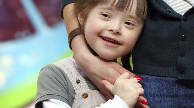 Man sieht ein kleines Mädchen mit Down-Syndrom.