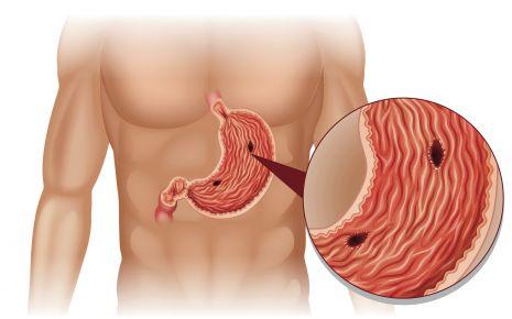Oberkörper mit hervorgehobenem Magen und Magengeschwür