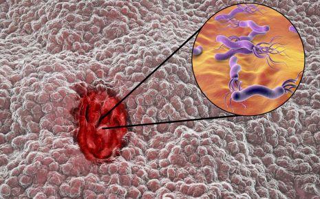 Nahaufnahme eines Magengeschwürs mit Helicobacter pylori