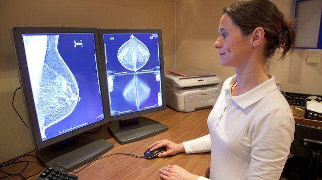 Das Bild zeigt Ultraschallaufnahmen einer weiblichen Brust.
