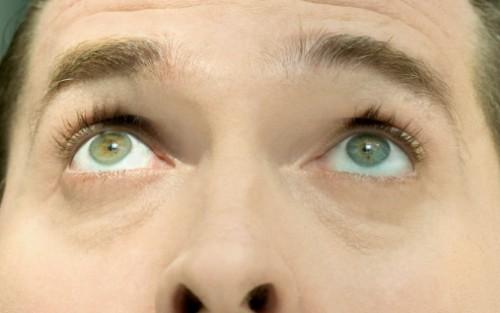 Das Bild zeigt die weit geöffneten, nach oben blickenden Augen eines Mannes.