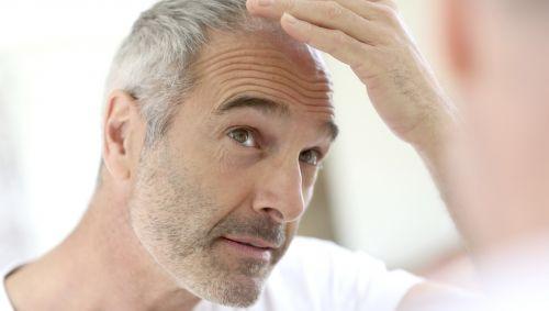 Das Bild zeigt einen älteren Mann mit Haarausfall.