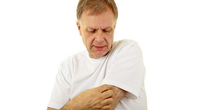 Ein Mann kratzt sich am Oberarm.