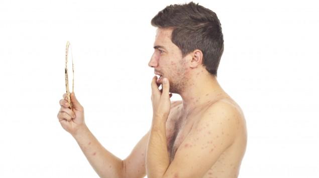 Das Bild zeigt einen Mann mit Ausschlag, der in einen Handspiegel schaut.