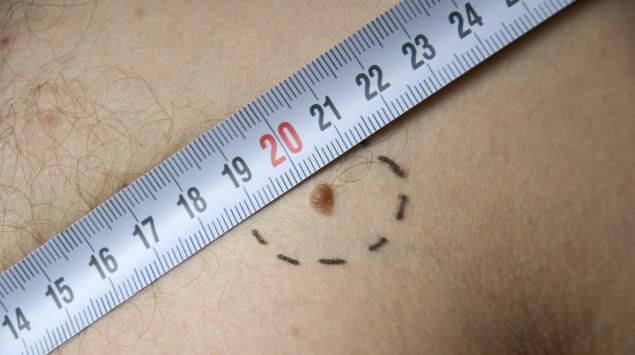 Der Durchmesser eines Melanoms auf der Haut wird mit einem Maßband gemessen.
