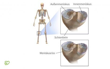 Das Bild zeigt eine anatomische Darstellung des Innen- und Außenmeniskusses sowie einen Meniskusriss.