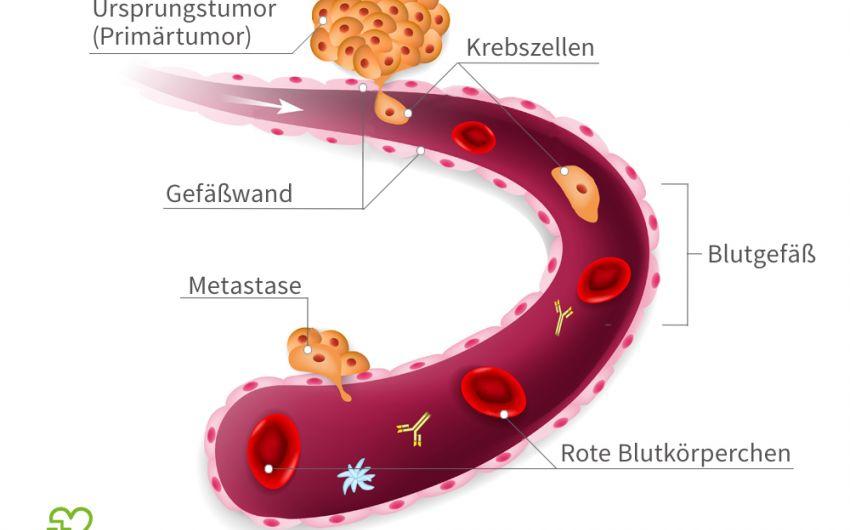 Bestimmte Krebszellen können die Wand eines Blutgefäßes durchdringen, mit dem Blutstrom in andere Körperregionen gelangen und dort Metastasen bilden.