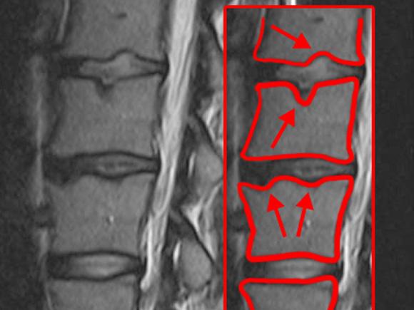 Das Bild zeigt eine MRT-Aufnahme einiger Wirbelkörper mit Schmorl-Knötchen.