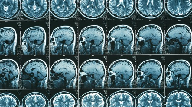 MRT-Aufnahmen des Kopfes und Gehirns