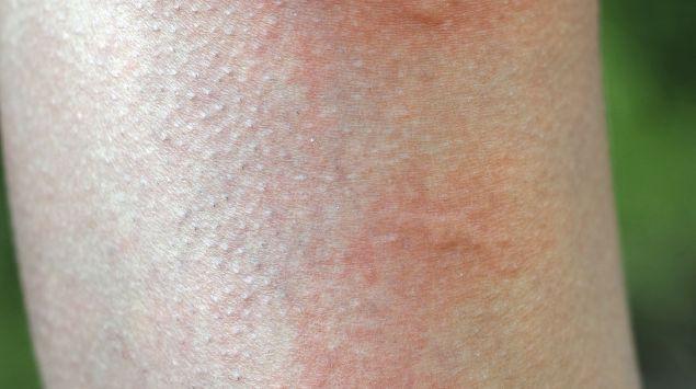 Das Bild zeigt mehrere Mückenstiche am Bein.
