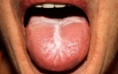 Soor auf der Zunge