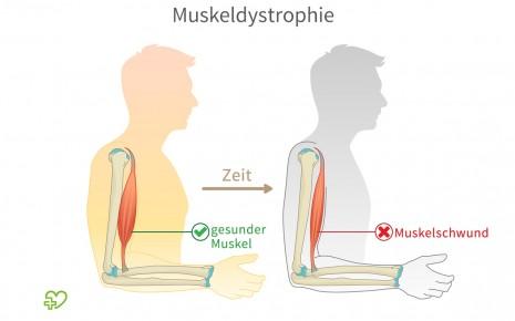 Man sieht eine Illustration zum Thema Muskeldystrophie.