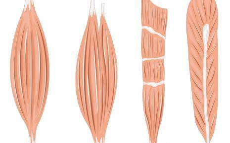 Das Bild zeigt eine Illustration der unterschiedlichen Muskelformen.