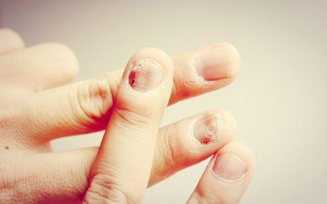 Nagelpilz kann auch die Fingernägel befallen.