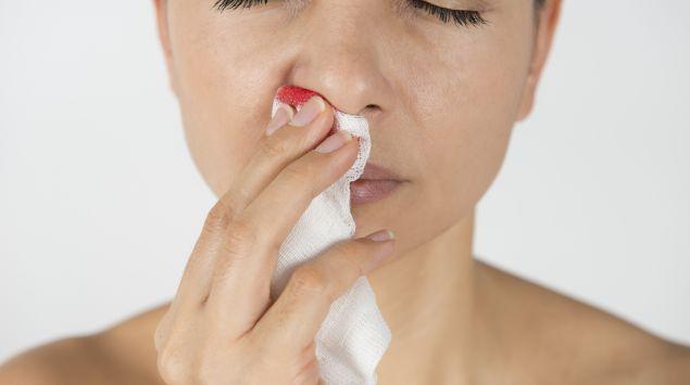 Das Bild zeigt eine Frau mit Nasenbluten