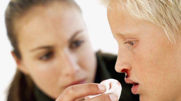 Das Bild zeigt einen Jungen, der unter Nasenbluten leidet.