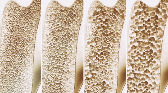 Man sieht unterschiedliche Stadien von Knochenschwund.