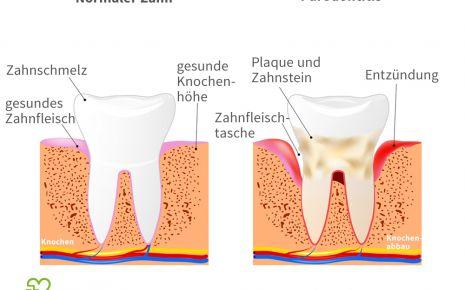 Illustration: Entstehung einer Parodontitis