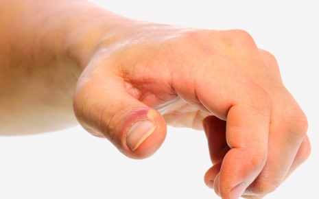 Bei dieser Nagelbettentzündung am Daumen hat sich bereits ein Abszess gebildet.