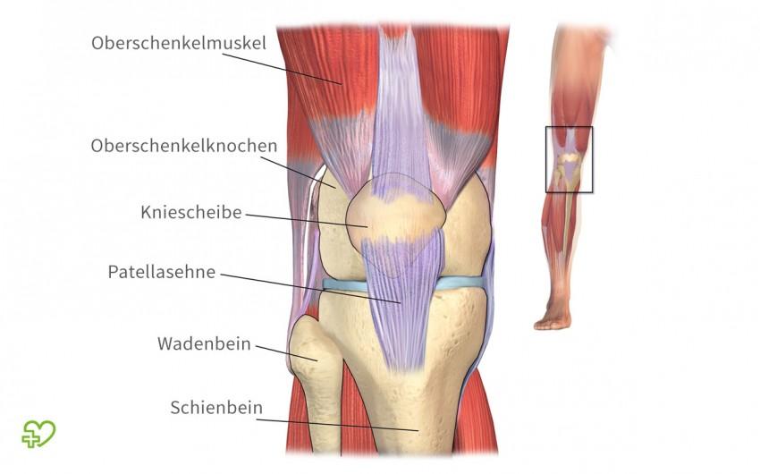 12 Gründe, warum die Knie schmerzen - Onmeda.de
