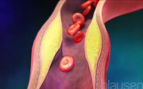 Periphere arterielle Verschlusskrankheit Video