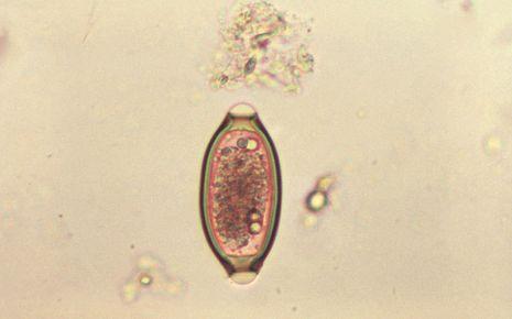 Man sieht ein Peitschenwurm-Ei unter dem Mikroskop.