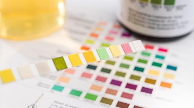Man sieht einen pH-Wert-Teststreifen, eine Auswertungshilfe und einen Behälter mit Urinprobe.