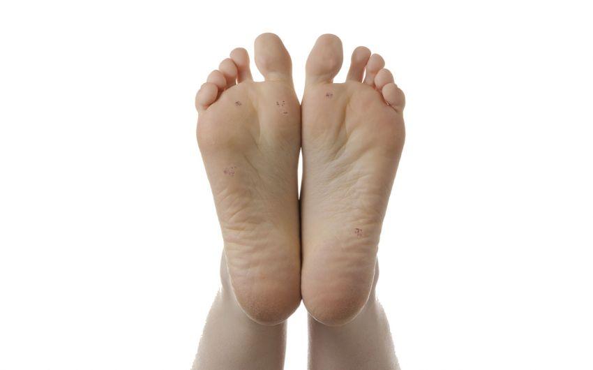 Dornwarzen: Man sieht Plantarwarzen auf den Fußsohlen.