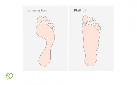 Im Vergleich: skizzierter Abdruck von normalen Füßen zu sog. Plattfüßen