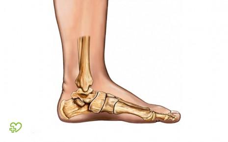 Ein Plattfuß ist von außen meist gut zu erkennen: Das Fußgewölbe ist so stark durchgetreten, dass der Fuß gänzlich am Boden aufliegt. Beschwerden verursacht ein Plattfuß eher selten.