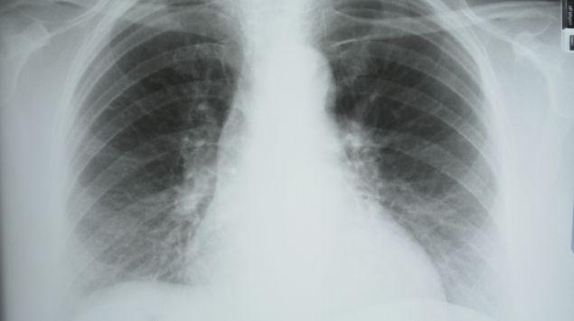 Das Bild zeigt die Röntgenaufnahme eines Brustkorbs.
