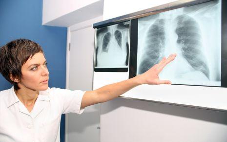 Röntgenaufnahme der Lunge