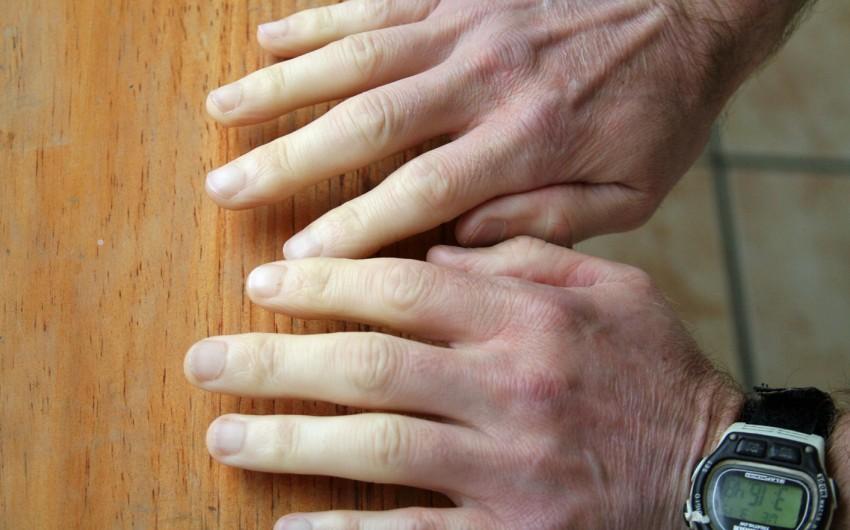 Durchblutungsstörung der Finger beim Raynaud-Syndrom