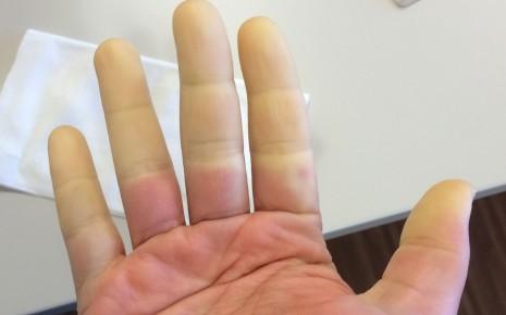 Durchblutungsstörung der Finger bei Raynaud-Syndrom