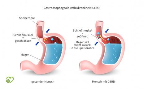 Illustration zur Ursache der gastroösophagealen Refluxkrankheit