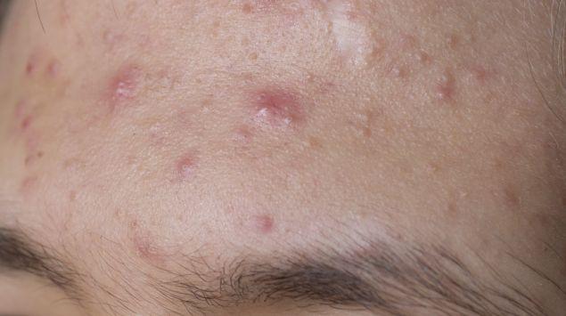 Das Bild zeigt eine Stirn mit Aknepickeln.